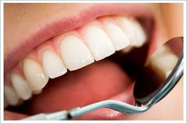 審美歯科写真